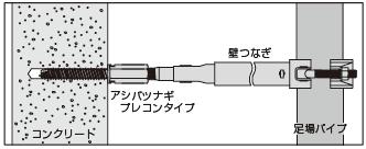 アシバツナギ プレコンタイプ 〈ナット固定式〉施工例
